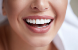 Adelaide_teeth_whitening